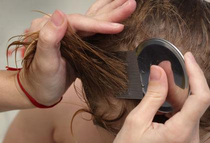 القيود لتقول الحقيقة درع تنظيف الشعر من القمل والصيبان Findlocal Drivewayrepair Com