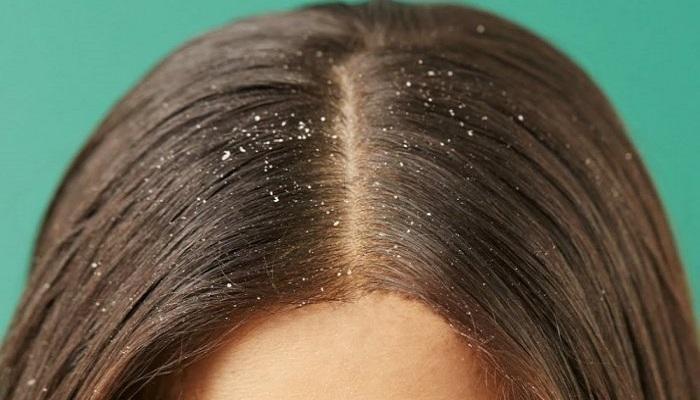 قشرة الشعر في الشتاء..أسبابها وطرق علاجها