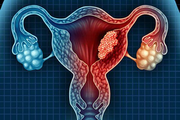 فحص بسيط يتيح كشف سرطان بطانة الرحم